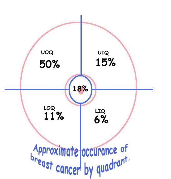 breast-cancer-by-quadrant