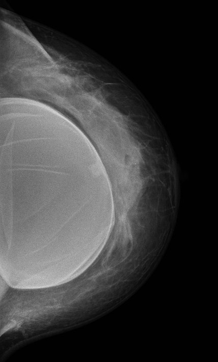 The typical appearance of folds in a breast implant.