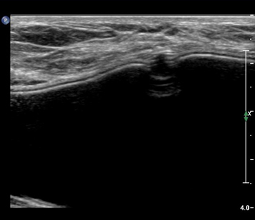 Ultrasound image- A normal finding of an implant 'valve'. Also visible in the mammogram below.