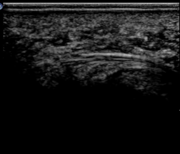 Ultrasound of a normal common interdigital nerve