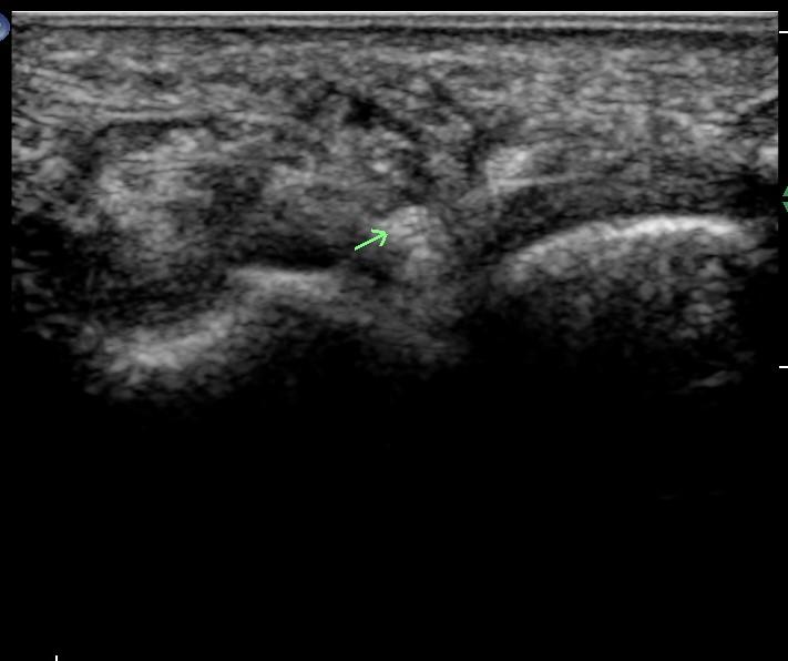 Ultrasound of digital nerve mortons neuroma site
