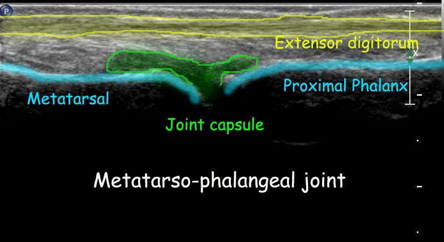 ultrasound of metatarso-phalangeal joint