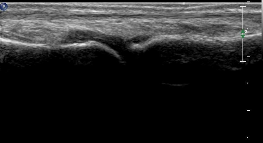 Ultrasound of metatarso-phalangel joint