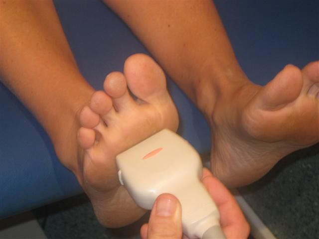 The same scan plane and technique is employed to examine for Mortons neuromas or metatarsal bursae because they are differential diagnoses for each other.