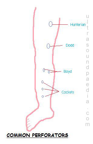 https://ultrasoundpaedia.com/wp-content/uploads/2018/07/perforator-anatomy.jpg