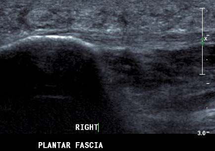 Normal plantar fascia origin on the calcaneum. Tension enthesophytes are common here.