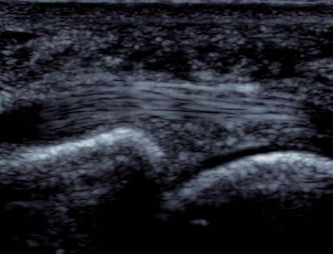 Ultrasound image- A normal plantar plate (green) underlying the flexor digitorum tendon.
