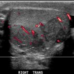 Ultrasound image- Transverse of the germ cell tumor and power doppler confirming internal flow.