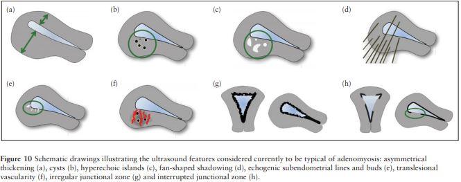 Ultrasound adenomyosis