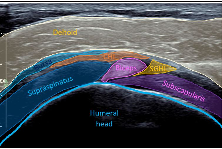 Rotator cuff interval ultrasound with highlighted anatomy.