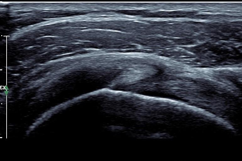 Rotator cuff interval ultrasound.