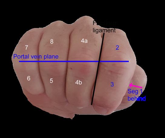 fist showing liver segmental anatomy