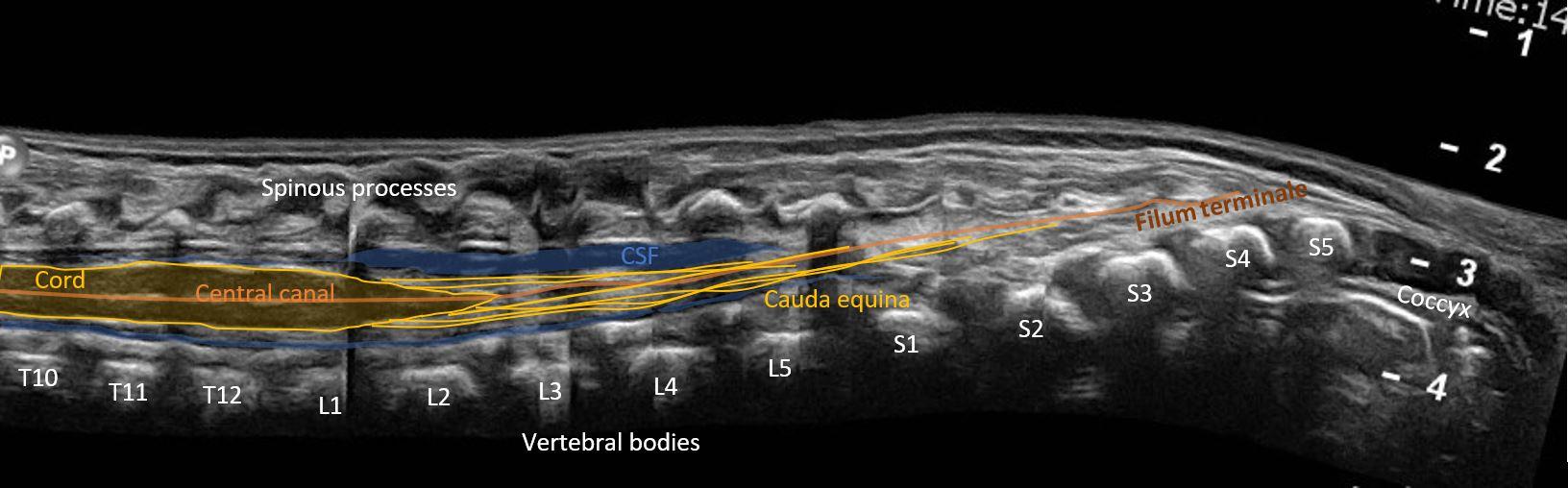 panorama neonatal spine hl