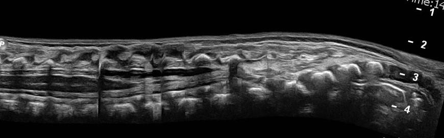 panorama neonatal spine